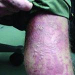 Bőrsérülést okozó gyógynövény